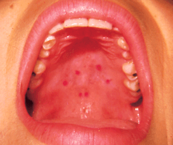 Red Spots On Roof Of Mouth Health Momma