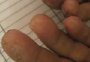 Exfoliative Keratolysis fingers peeling skin