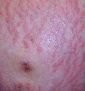pupps rash pictures