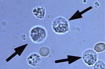 White Blood Cells In Urine No Infection Health Momma