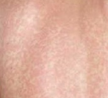 Lamictal Rash - Pictures, Symptoms, Treatment | Health Momma