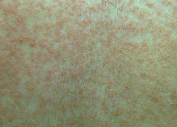 Maculopapular Rash Pictures Treatment Symptoms Causes