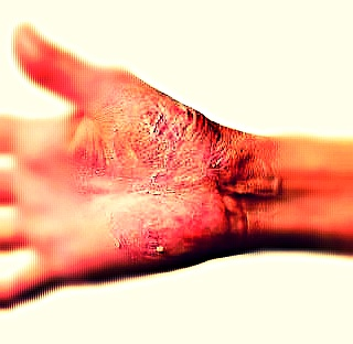 Tinea Manuum – Pictures, Symptoms, Treatment, Causes, Home